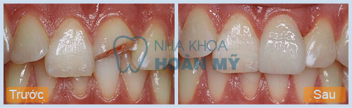 Phương pháp nào phục hồi răng cửa bị mẻ tối ưu nhất ?