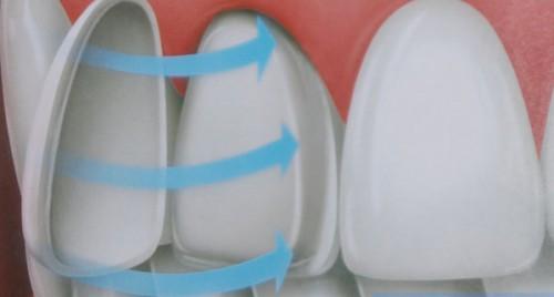 Phương pháp nào giúp phục hồi răng cửa bị mẻ hiệu quả nhất? 2