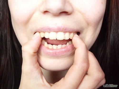 Phương pháp nào sửa răng cửa bị vẩu hiệu quả? 1