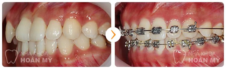 Phương pháp nào sửa răng cửa bị vẩu nhanh và hiệu quả? 4