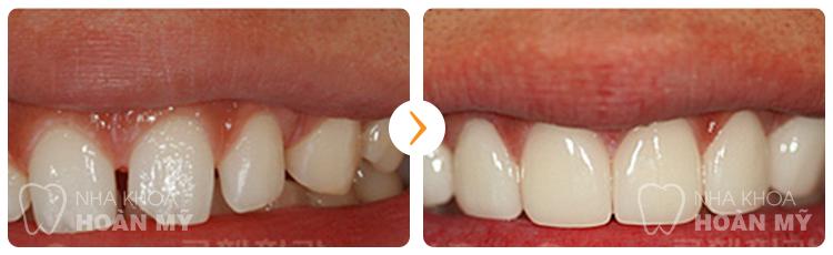 Thưa bác sĩ răng của em bị thưa làm thế nào để cho đều khít ?