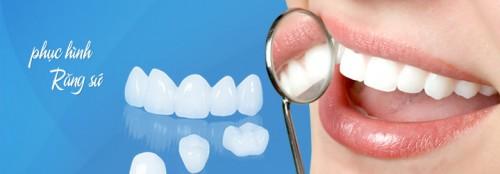 Làm răng sứ bằng titan có đẹp không? 2