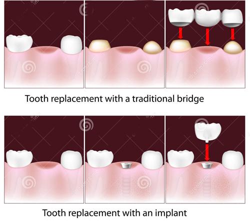 Làm cầu răng sứ có độ bền bao lâu? 2