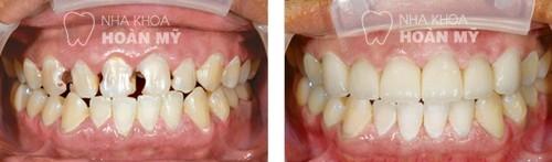 Cho em hỏi răng sứ titan sử dụng được bao lâu thì bọc lại ?