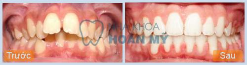 Răng vẩu phải làm sao để khắc phục? 2