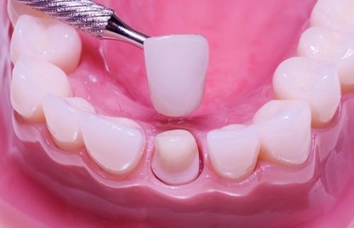 Bọc sứ cho răng sâu có cần lấy tủy hay không? 1