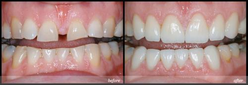 Khắc phục khiếm khuyết răng thưa bằng bọc sứ có tốt không? 3