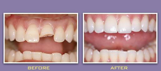 Nên lựa chọn loại răng sứ nào tốt khi bị mẻ răng? 1