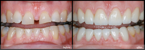 Giải pháp nào tốt nhất cho 2 răng cửa bị thưa ?
