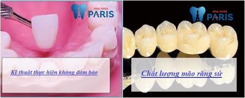 bọc răng sứ có gây hôi miệng không 11