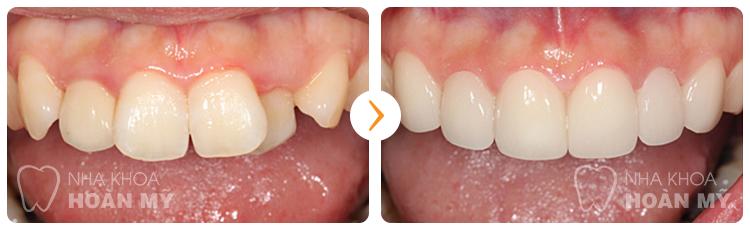 Có nên mài răng lệch cho đều hơn không?