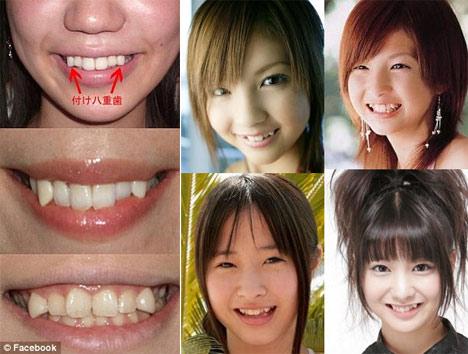 Để có hàm răng đẹp có nên mài răng nanh hay không ?