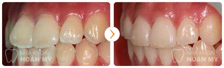 Có nên nắn chỉnh răng vẩu bằng cách bọc sứ không?