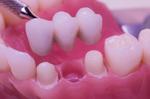 Làm cầu răng sứ cho răng đã mất, nên hay không nên? 1