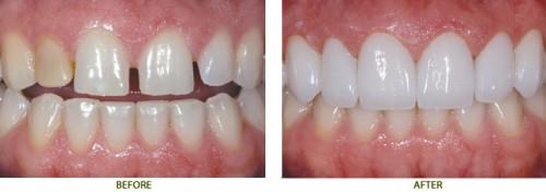 Làm mặt dán sứ Veneer cho răng thưa có tốt hay không? 1