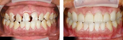 Sau khi bọc răng sứ bị đau & cách khắc phục TRIỆT ĐỂ 2