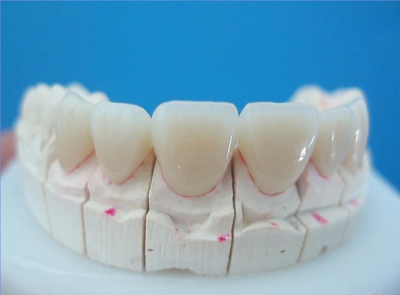 Sau khi bọc răng sứ bị đau và cách khắc phục TRIỆT ĐỂ
