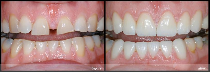 Bọc răng sứ cho răng bị thưa nhiều có tốt hay không?