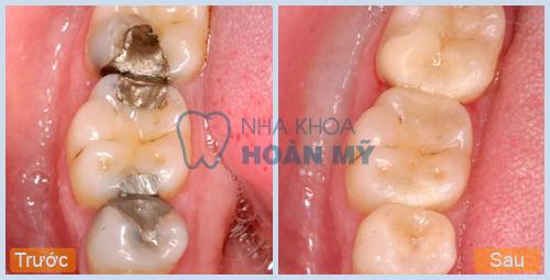 Khi răng hàm  bị sâu bọc răng sứ có bền hay không ?
