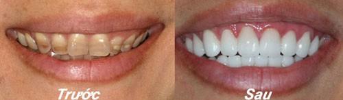 Bọc răng sứ cho răng mòn mặt nhai có tốt hay không?