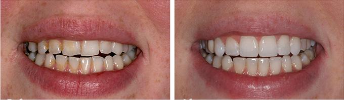 Nên lựa chọn tẩy trắng hay bọc răng sứ cho răng xỉn màu nặng? 1