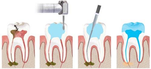 Tại sao cần bọc sứ sau khi lấy tủy cho răng sâu? 1