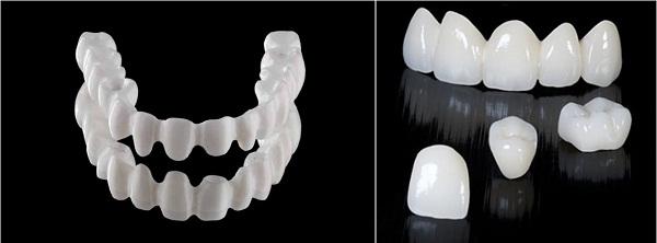 Tại sao nên lựa chọn bọc răng sứ không kim loại? 1
