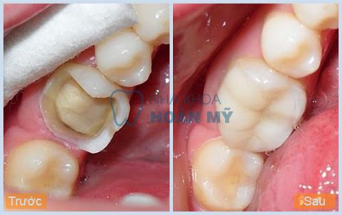 Tại sao nên lựa chọn bọc răng sứ không kim loại? 4
