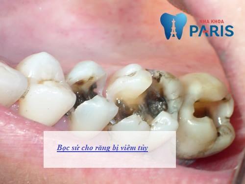 Bọc sứ cho răng bị viêm tủy mất thời gian bao lâu? 1
