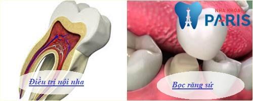 Bọc sứ cho răng bị viêm tủy mất thời gian bao lâu? 2