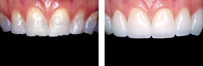 Chỉnh răng cửa bị mẻ phương pháp nào tốt nhất? 2