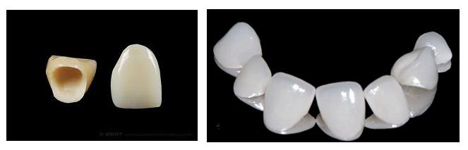 Có nên bọc sứ cho răng mòn mặt nhai không? 2