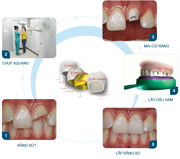 Có nên phục hồi răng cửa bị mẻ bằng cách bọc sứ không? 2