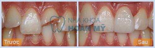 Phương pháp phục hồi răng mẻ hiệu quả nhất hiện nay