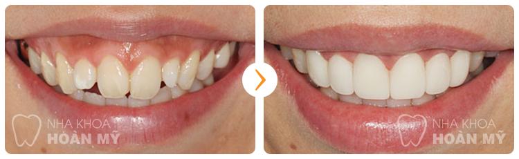Làm răng sứ Cercon cần đạt được những tiêu chí nào? 3