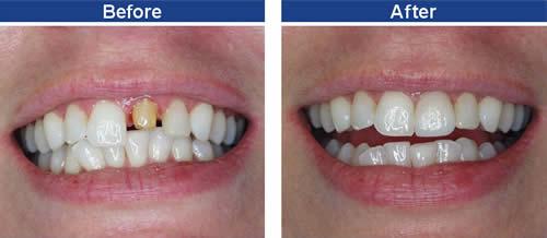 Những trường hợp nào răng cửa có thể mài cùi? 2