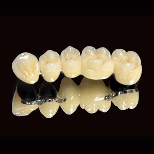 Tìm hiểu về những đặc trưng nổi bật của răng sứ Titan 4