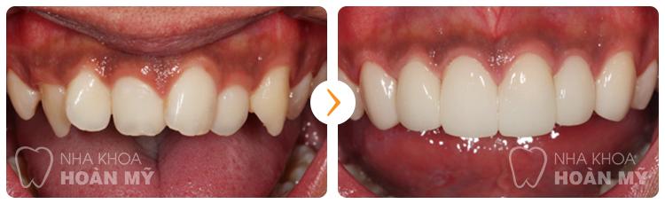 Có nên bọc sứ cho răng nanh dài quá cỡ hay không?