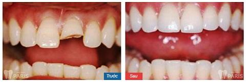 Tình trạng sứt mẻ lớn vẫn có thể khôi phục hoàn toàn bằng biện pháp bọc răng sứ