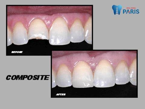 Bị sứt răng cửa có sửa được không không còn là vấn đề lo ngại khi có biện pháp trám răng