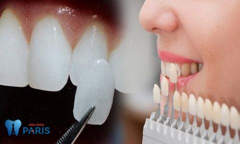 Dán sứ Veneer - Biện pháp thẩm mỹ răng cửa bị sứt mẻ tối ưu