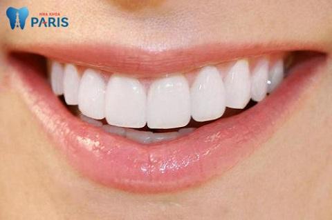 Bọc răng sứ bảo đảm tính thẩm mỹ cao