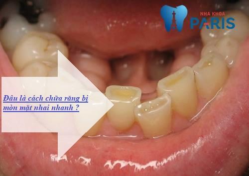 Cách chữa răng bị mòn mặt nhai NHANH CHÓNG - HIỆU QUẢ NHẤT 1