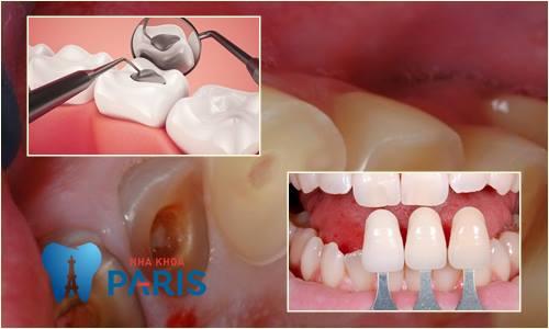 Cách chữa răng bị mòn mặt nhai NHANH CHÓNG - HIỆU QUẢ NHẤT 4