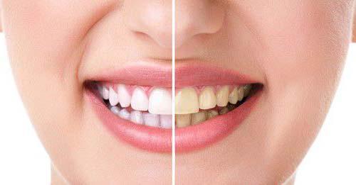 Răng sứ bị đổi màu 1
