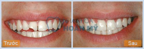 Thưa bác sĩ em bị sứt răng nên chữa bằng cách nào ?