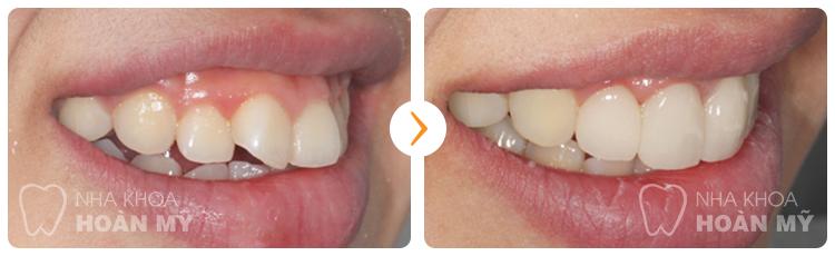 Cách chữa răng vẩu nhẹ bằng bọc sứ có hiệu quả không?