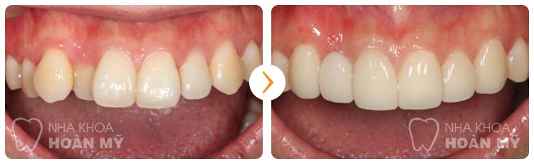 Chăm sóc răng sứ Titan như thế nào để giữ độ bền chắc?