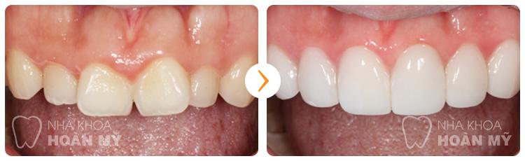 Hôi miệng khi bọc răng sứ có nguyên nhân do đâu?