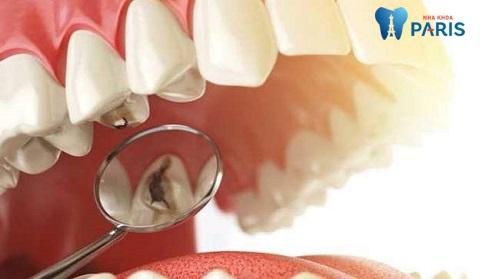 """Bọc răng sứ cho răng hàm vỡ lớn giúp """"tái tạo"""" hình thể răng"""
